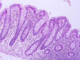 lab.anhb.uwa.au/mb140/corepages/epithelia/epithel.htm