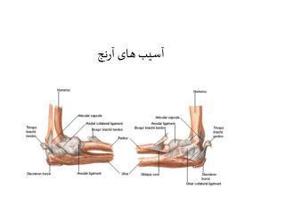 آسیب های آرنج