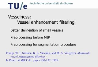 Vesselness:   Vessel enhancement filtering