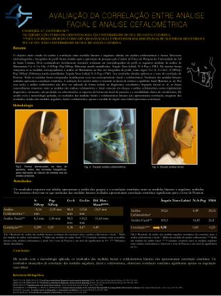 Avaliação da correlação entre análise facial e análise  cefalométrica