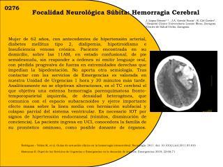 Focalidad Neurológica Súbita: Hemorragia Cerebral