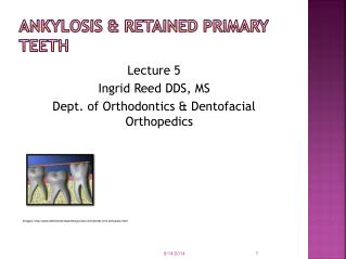 Ankylosis & Retained Primary Teeth