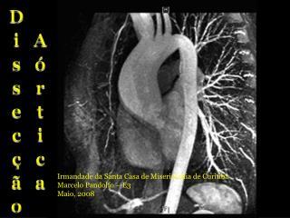 Dissecção Aórtica
