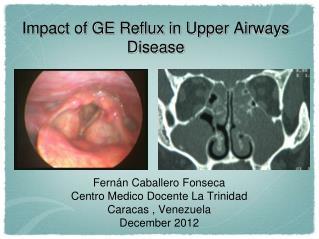 Impact of GE Reflux in Upper Airways Disease