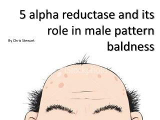 5 alpha  reductase and its role in male pattern baldness