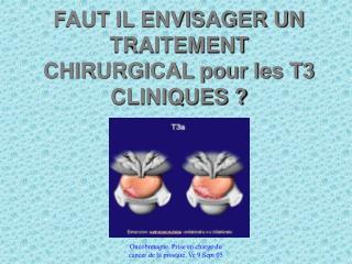 FAUT IL ENVISAGER UN TRAITEMENT CHIRURGICAL pour les T3 CLINIQUES ?