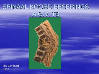 SPINAAL KOORD BESERINGS A.G.V. TB