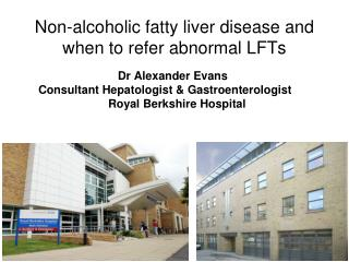 Non-alcoholic fatty liver disease and when to refer abnormal LFTs
