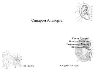 Синдром Альпорта Карпов Дмитрий Оленчук Владислав Огороднищук Максим Щербакова Ольга