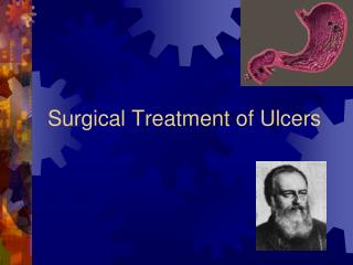 Surgical Treatment of Ulcers