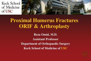 Proximal  Humerus  Fractures ORIF &  Arthroplasty