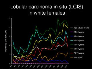 Lobular carcinoma in situ (LCIS) in white females