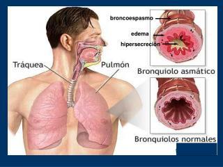 ASMA BRONQUIAL.- Definicion