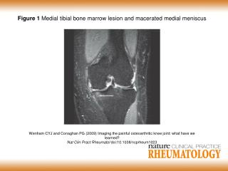 Figure 1  Medial tibial bone marrow lesion and macerated medial meniscus