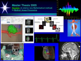 Master Thesis 2005 Wavelets  (A relative new Mathematical method) in  Medical  Image Processing