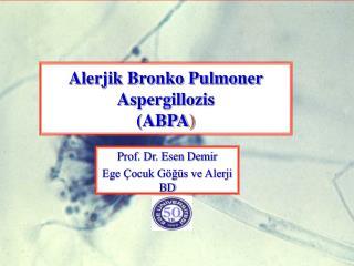 Alerjik Bronko Pulmoner  Aspergillozis (ABPA )
