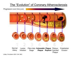 "The ""Evolution"" of Coronary Atherosclerosis"