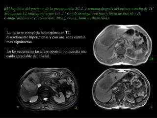 RM hepática del paciente de la presentación TC 2, 1 semana después del primer estudio de TC