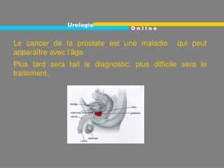 Le cancer de la prostate est une maladie  qui peut appara tre avec l  ge. Plus tard sera fait le diagnostic, plus diffic