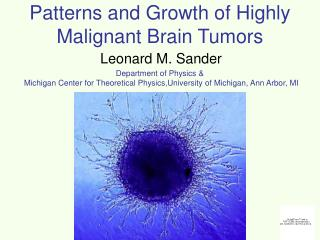 Patterns and Growth of Highly Malignant Brain Tumors