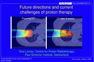 Future directions and current challenges of proton therapy