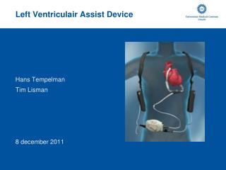 Left Ventriculair Assist Device