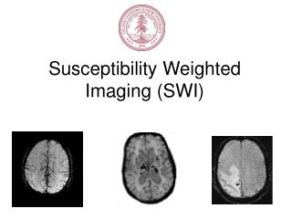 Susceptibility Weighted Imaging SWI