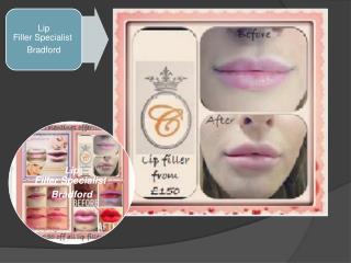 Lip Filler Specialist Bradford