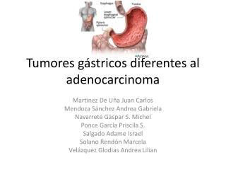 Tumores gástricos diferentes al adenocarcinoma