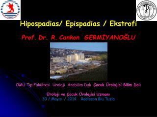 Hipospadias /  Epispadias  /  Ekstrofi