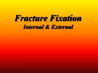 Fracture Fixation  Internal  External