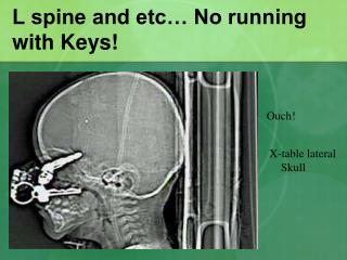 L spine and etc� No running with Keys!