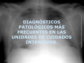 DIAGNÓSTICOS PATOLÓGICOS MÁS FRECUENTES EN LAS UNIDADES DE CUIDADOS INTENSIVOS.