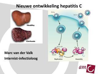 Nieuwe ontwikkeling hepatitis C