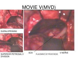 MOVIE V(MVD)
