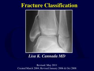 Fracture Classification