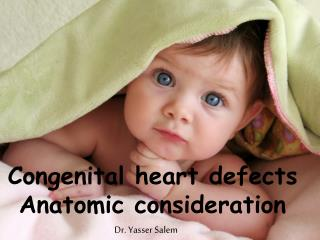 Congenital heart defects Anatomic consideration