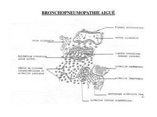 BRONCHOPNEUMOPATHIE AIGUË