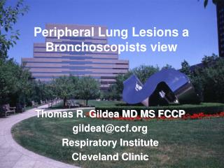 Peripheral Lung Lesions a Bronchoscopists view