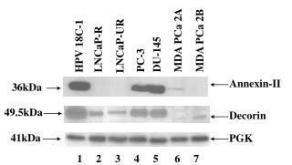 HPV 18C-1