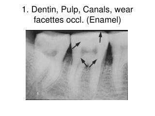 1. Dentin, Pulp, Canals, wear facettes occl. (Enamel)