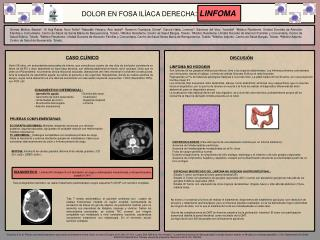 DIAGN�STICO DIFERENCIAL: Apendicitis aguda                               -  Diverticulitis cecal