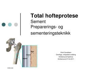 Total hofteprotese Sement  Preparerings- og sementeringsteknikk