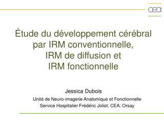 Étude du développement cérébral par IRM conventionnelle,  IRM de diffusion et  IRM fonctionnelle