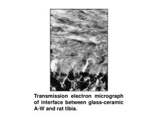 Transmission electron micrograph of interface between glass-ceramic A-W and rat tibia.