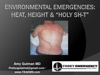 "Environmental Emergencies: heat, height & ""holy  sh -t"""