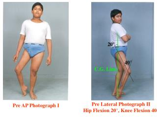 Pre Lateral Photograph II Hip Flexion 20°, Knee Flexion 40°