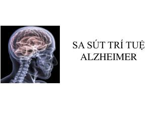 SA SÚT TRÍ TUỆ ALZHEIMER