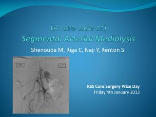 (A rare case of)  Segmental  A r terial Mediolysis