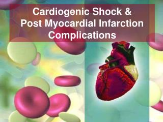 Cardiogenic Shock &  Post Myocardial Infarction Complications